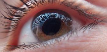 complicaciones_ojos