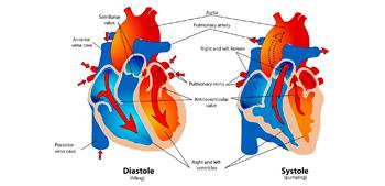 complicaciones cronicas de la diabetes mellitus tipo 2 ppt