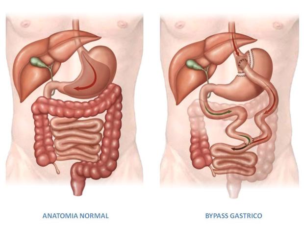 cirugía bariátrica de diabetes